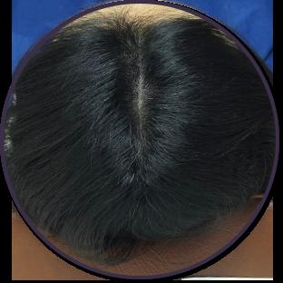 양모단계 머리사진