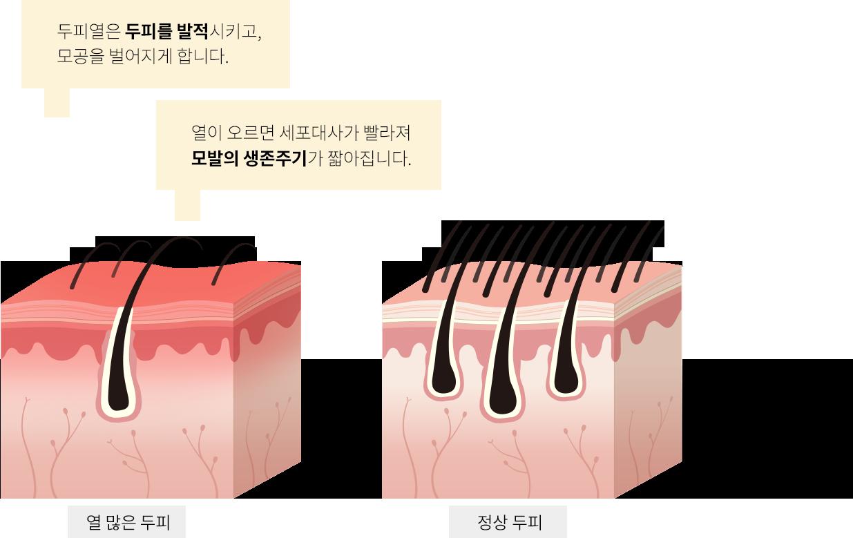 두피열은 두피를 발적시키고, 모공을 벌어지게 합니다. 열이 오르면 세포대사가 빨라져 모발의 생존주기가 짧아집니다. 열 많은 두피, 정상 두피